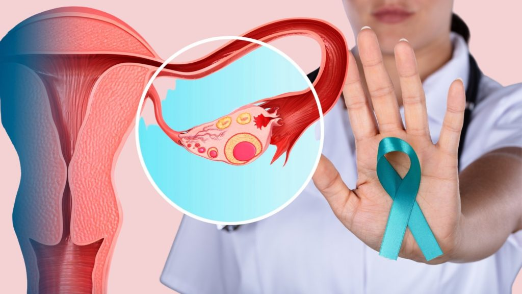 5 Early Warning Signs Of Ovarian Cancer