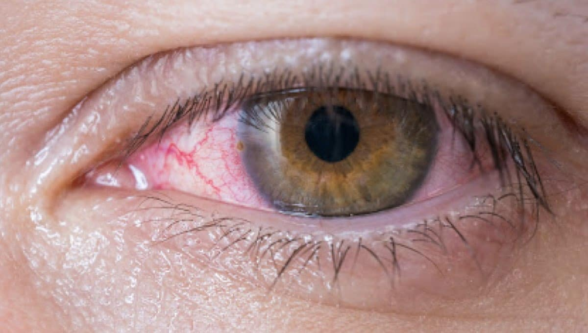 10 Symptoms And Treatments Of Conjunctivitis