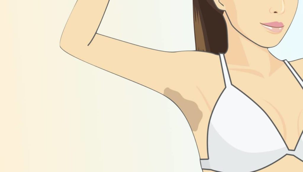 9 Unexpected Reasons Why You Have Lump in Your Armpit