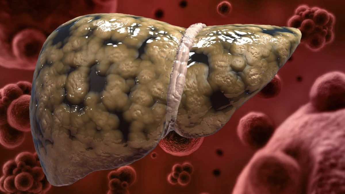 Basic Habits That Will Damage Your Liver