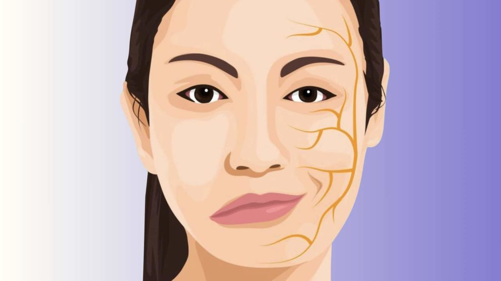 Bell's Palsy - Symptoms And Treatment