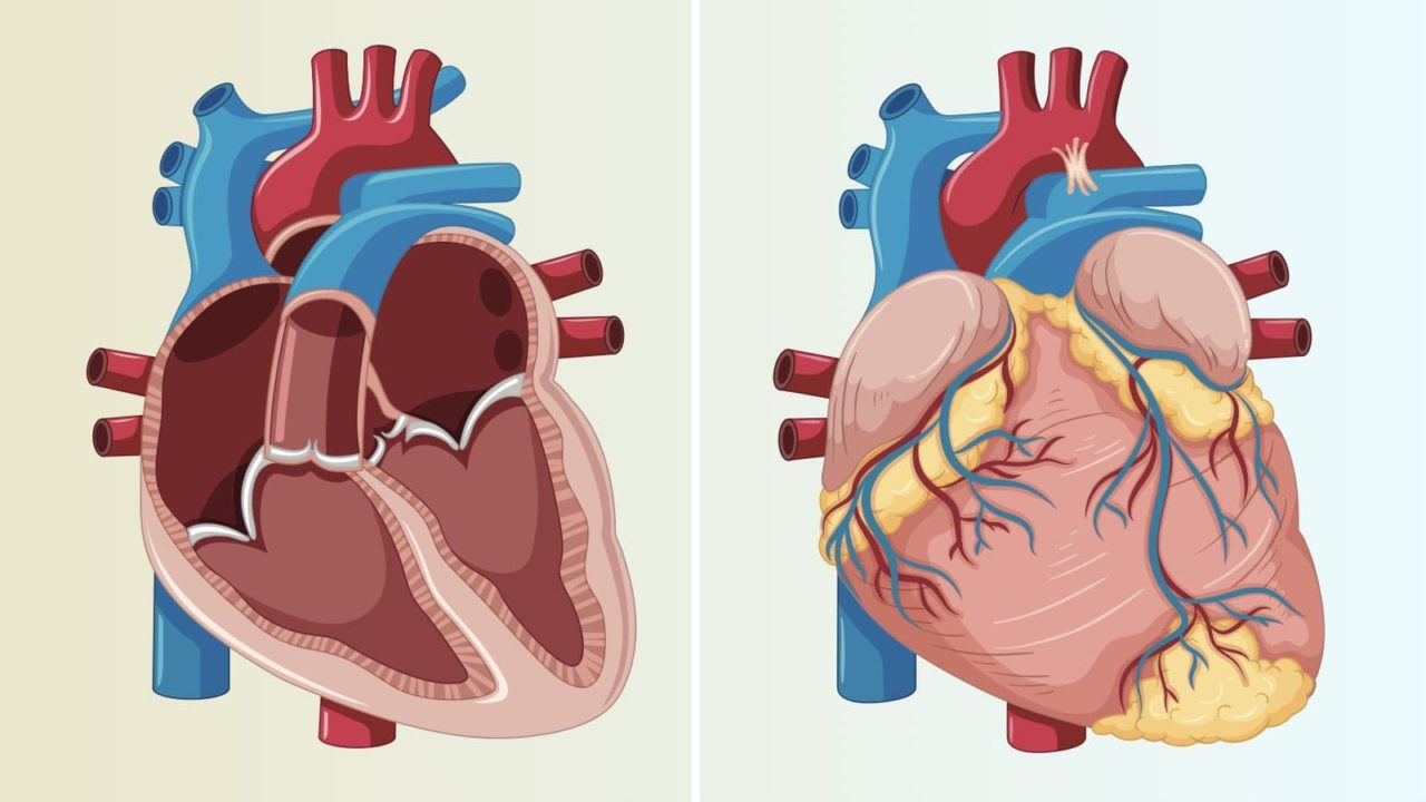 Everything You Need To Know About Tetralogy Of Fallot