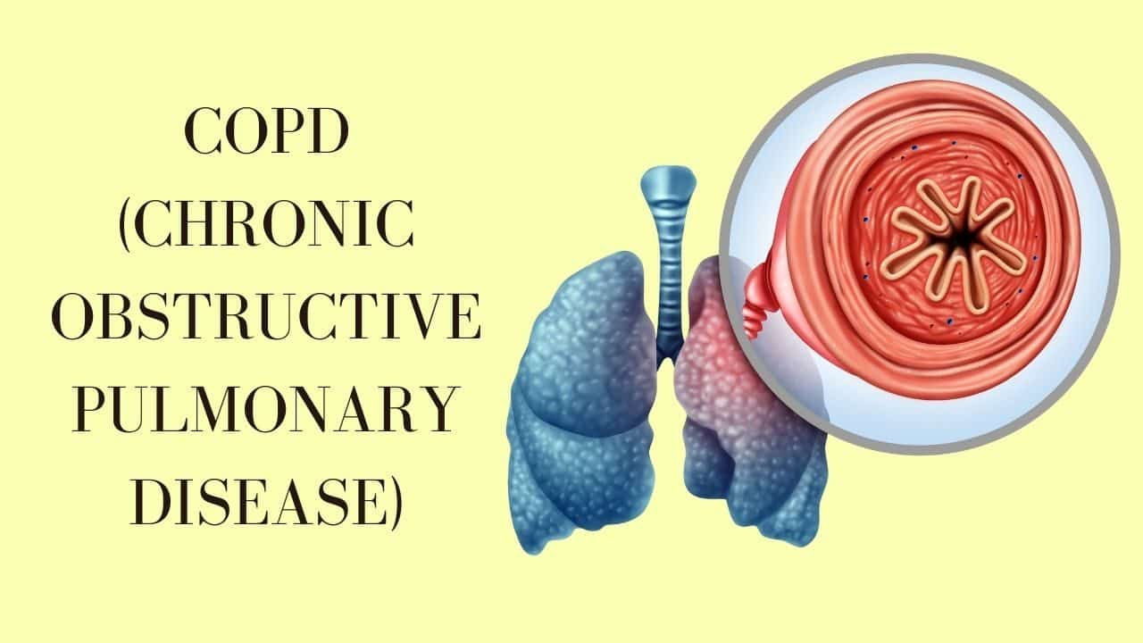 Everything You Need To Know About Copd