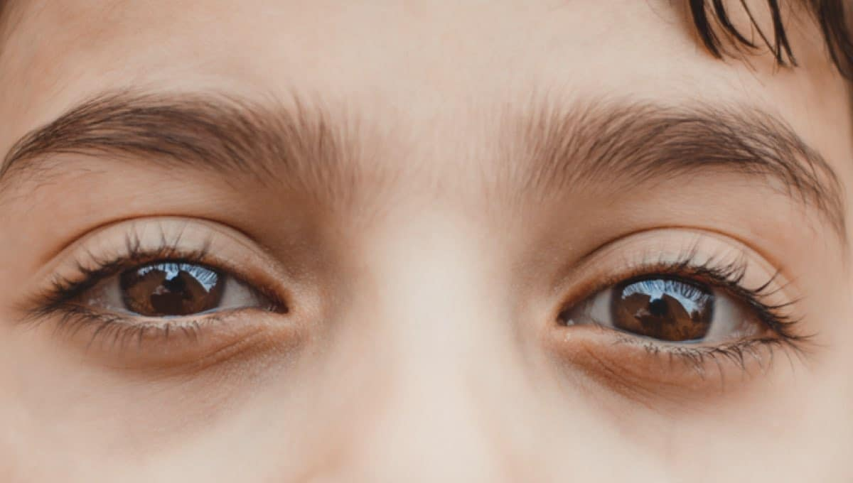 Everything You Wanted To Know About Lazy Eye