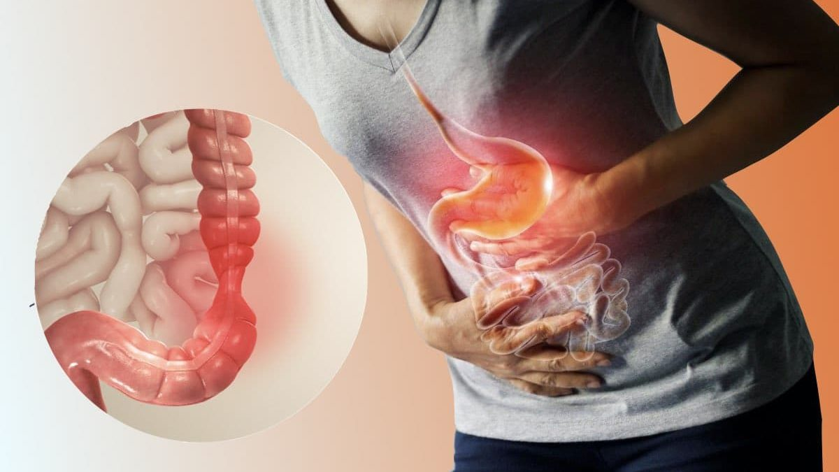 Irritable Bowel Syndrome (IBS) Why Your Abdominal Pain Gets Better After You Pass Gas