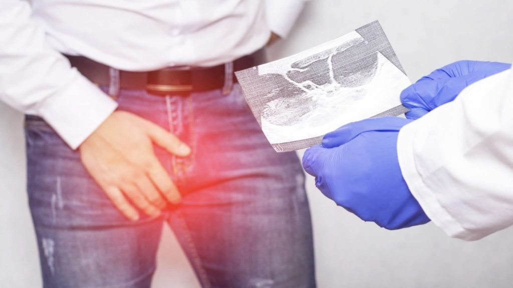 Testicular Torsion What Every Man Should Know