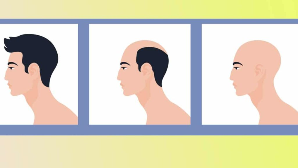 Why Am I Losing My Hair? Here's What You Should Know About Male Pattern Baldness