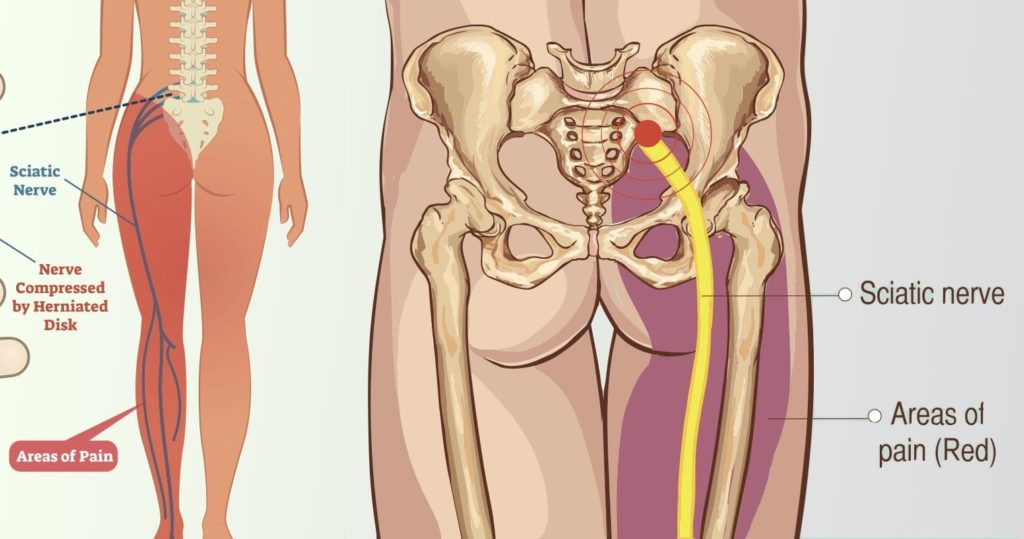 8 Ways to Ease Your Sciatica Pain