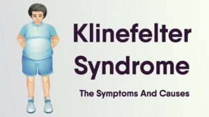 Klinefelter Syndrome - Here Are The Symptoms And Causes