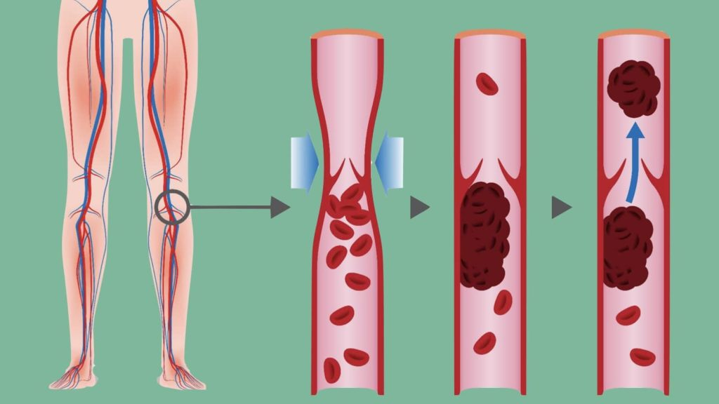 4 Warning Signs of a Blood Clot In Your Leg