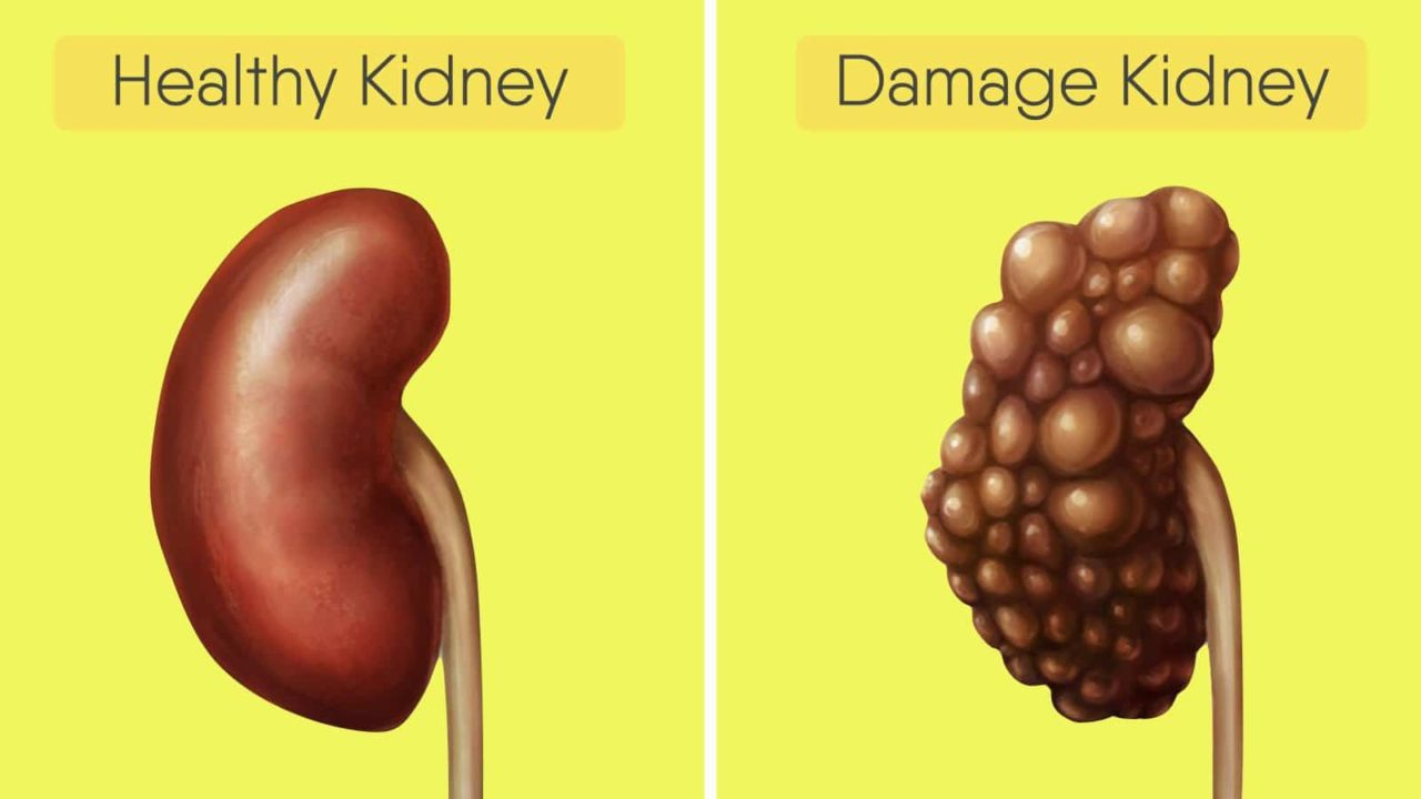 7 Effective Ways to Keep Your Kidneys Healthy