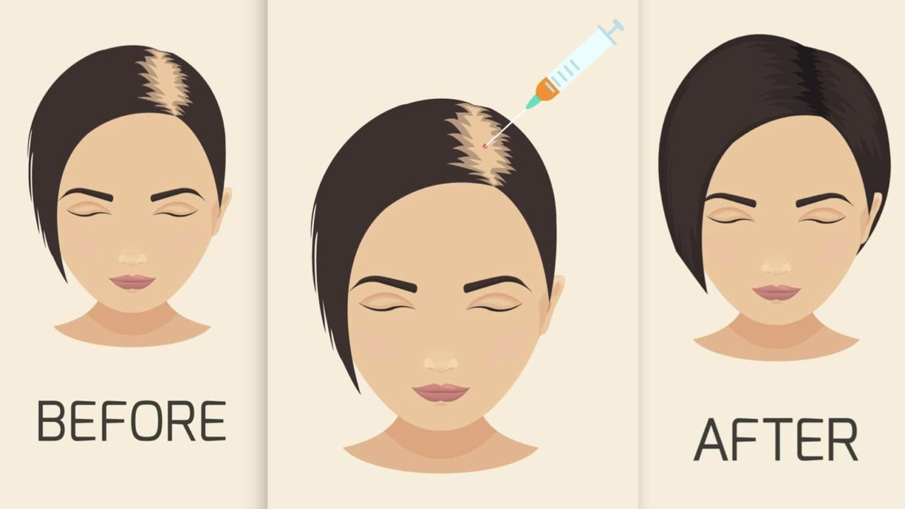 7 Most Effective Hair Loss Treatment