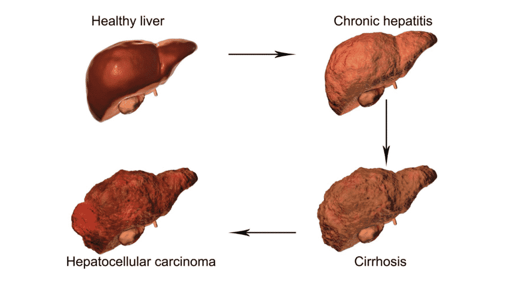 Early Signs Of Liver Cancer To Never Ignore