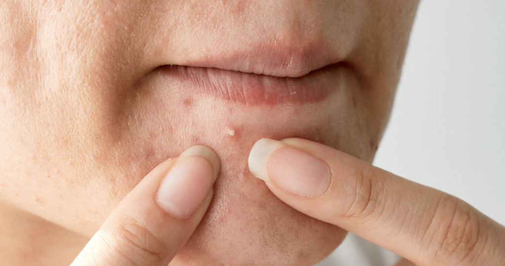 Quick and Easy Remedies to Get Rid of Pimples