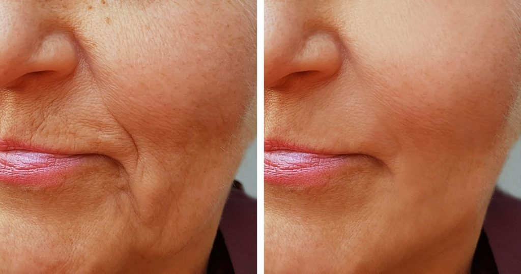 How to reduce wrinkles: