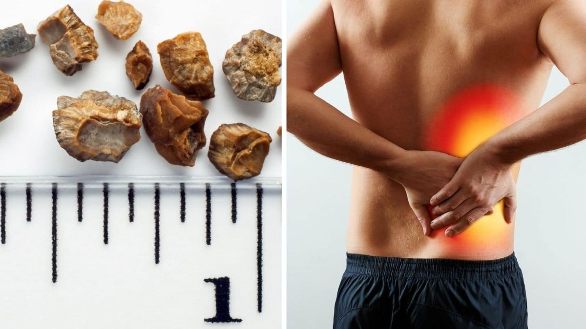 Warning Signs of Kidney Stone