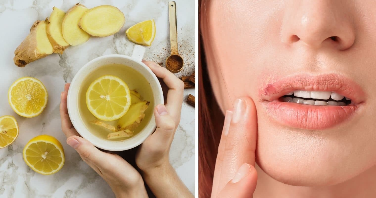 Effective Treatment For Cold Sores