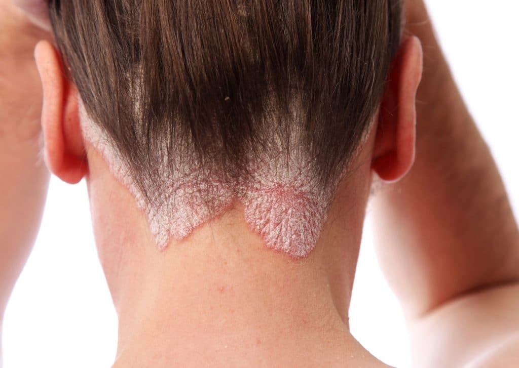Fungal Scalp Infection Signs And Symptoms