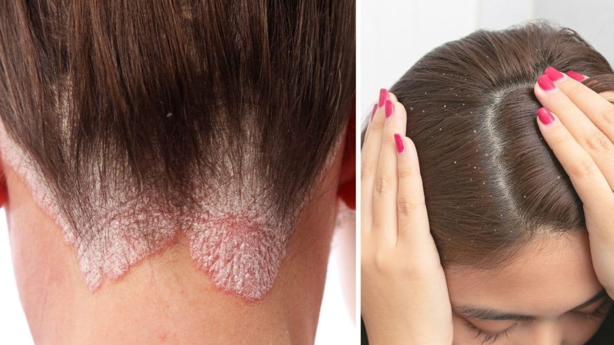 A woman with fungal scalp infection
