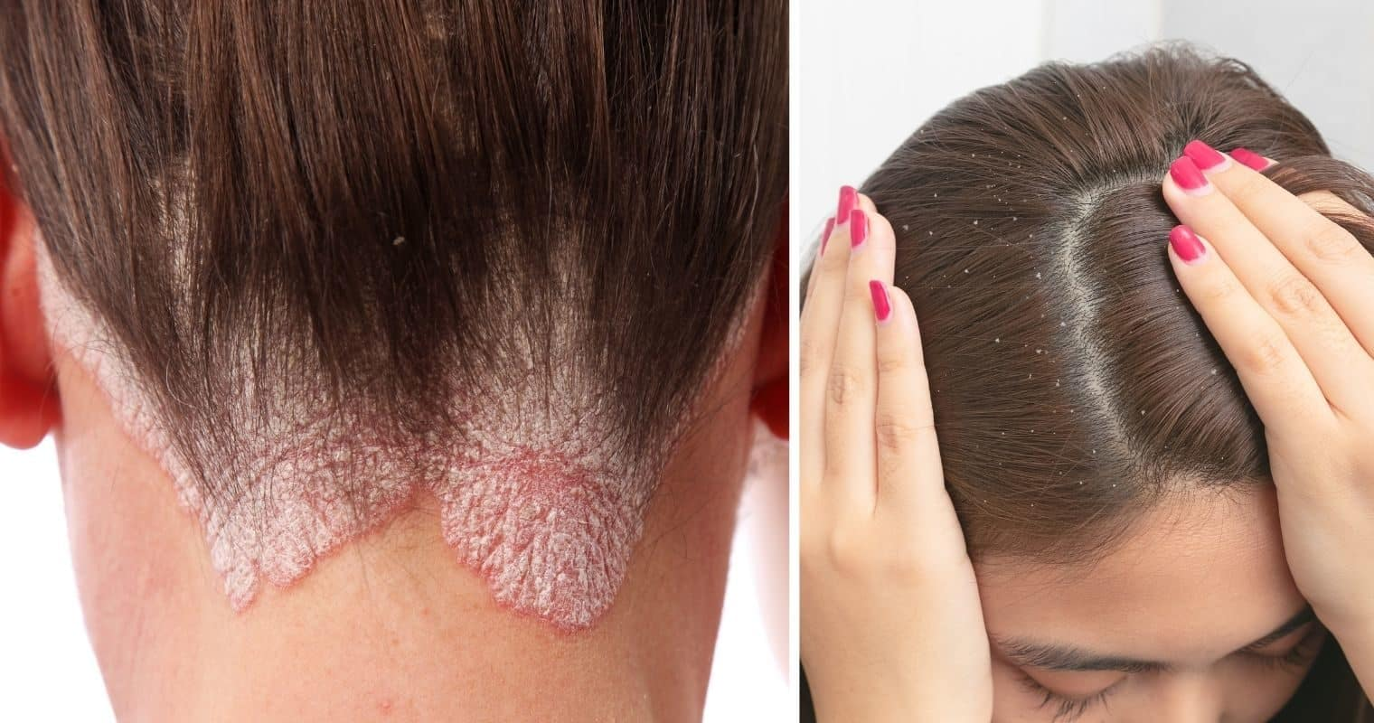 Get Rid Of Fungal Scalp Infection Permanently With These Cures