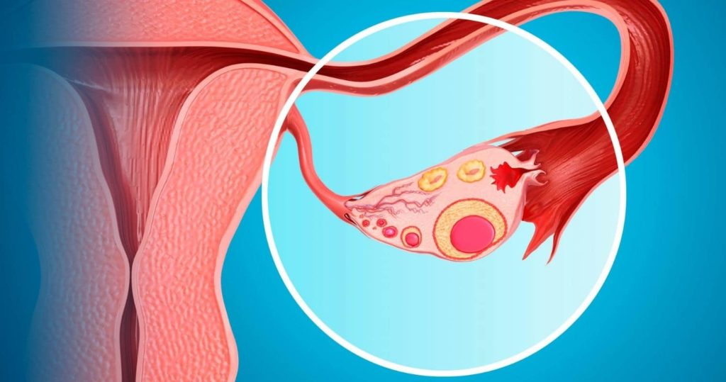 Ovarian Cysts: What Every Woman Needs to Know