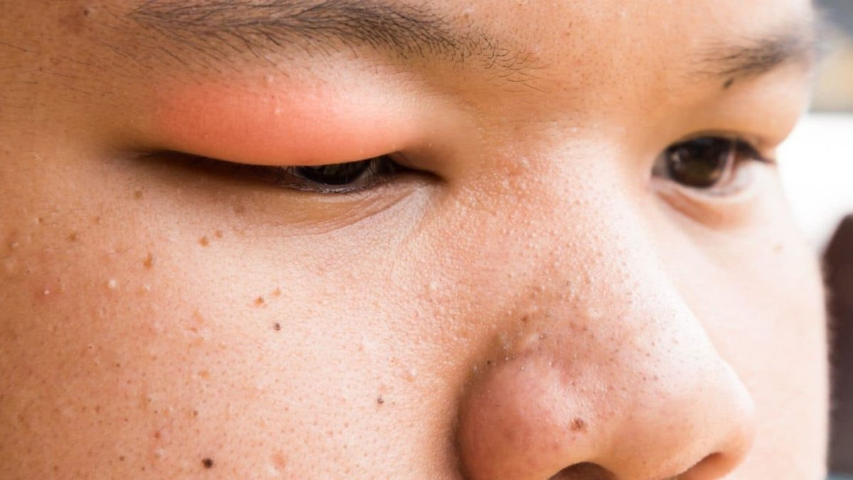 Reasons for Your Swollen Eyelid and How to Get Rid of It