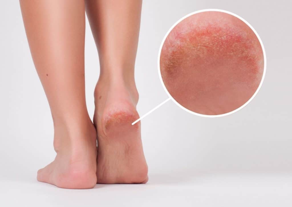 Remove Dry Skin From Your Legs.