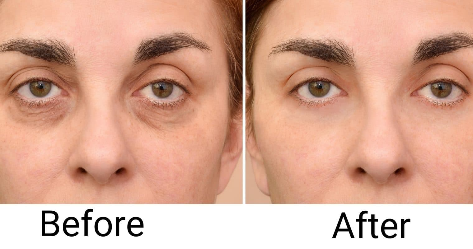 Tips To Getting Rid Of Bags Under Your Eyes