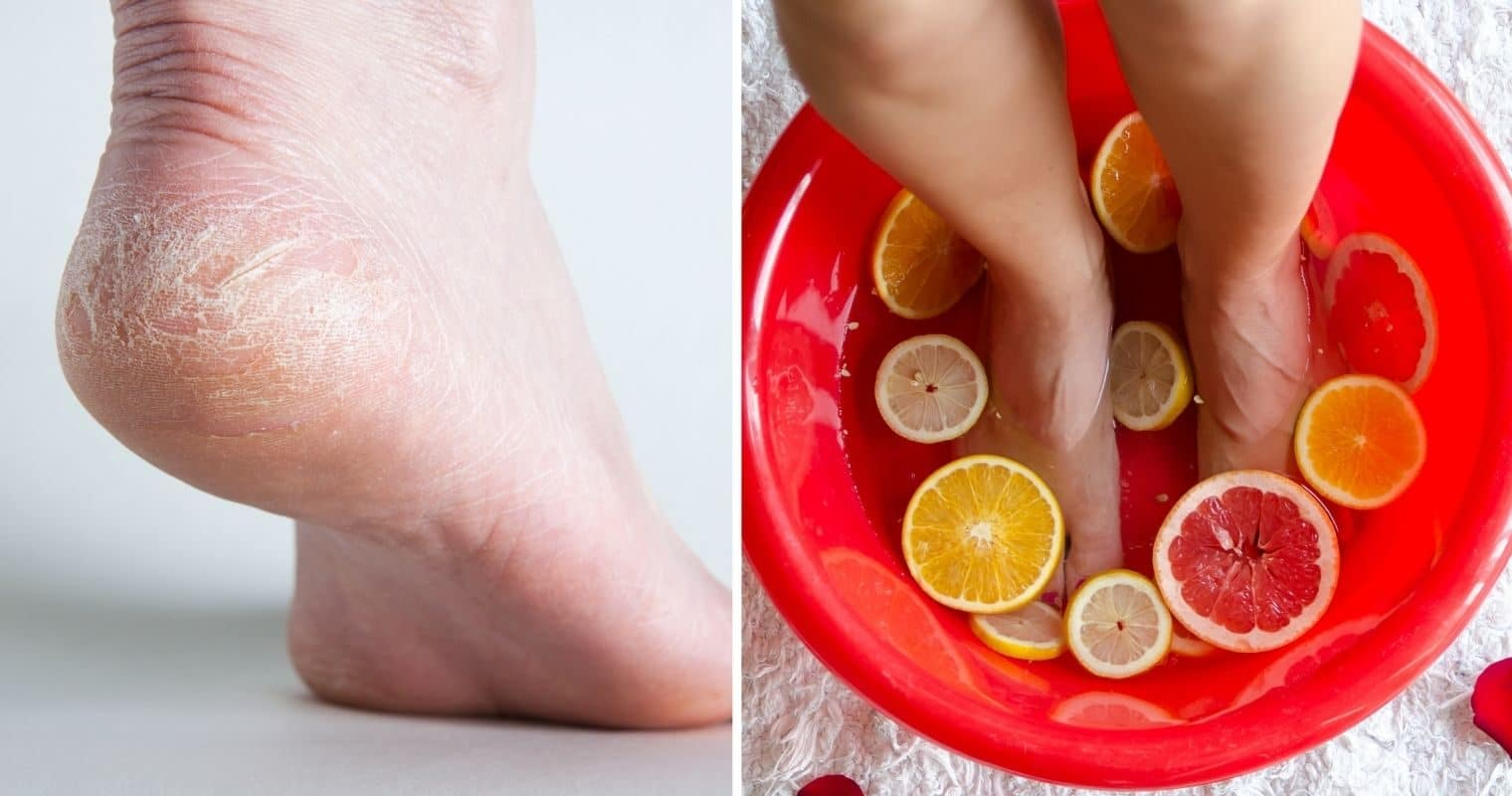 Tips To Remove Dry, Cracked Skin From Feet And Legs