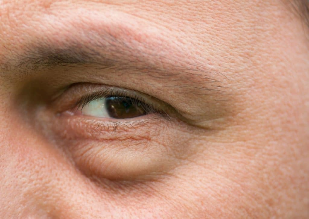 What Are Eye Bags, And How Do We Get Them?