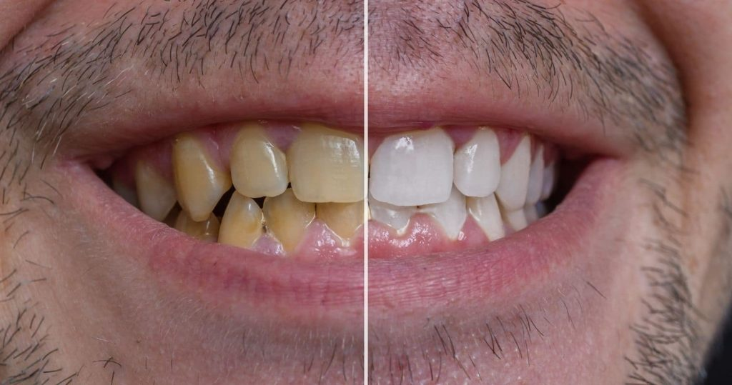 Whiten Your Yellow Teeth at Home With These Remedies