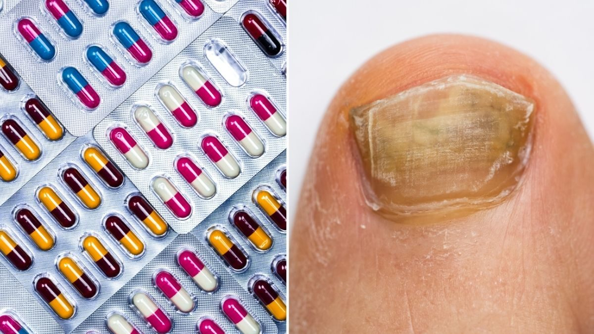 The side effects of antibiotics to never ignore