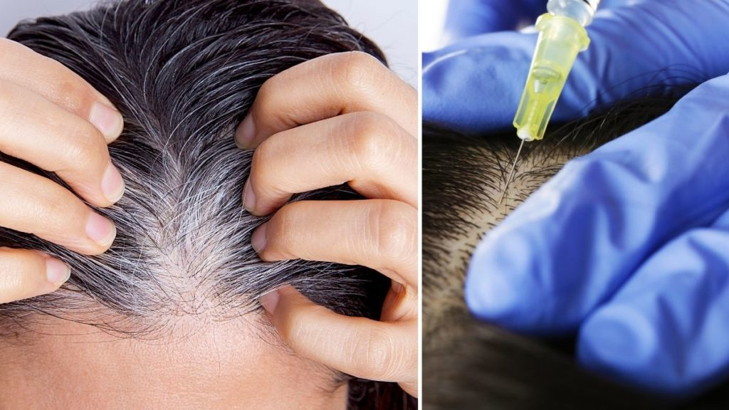 Six causes of gray hair at an early age
